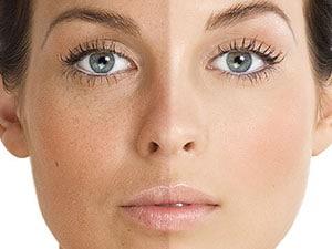Hyperpigmentation - Dr Sumit Gupta