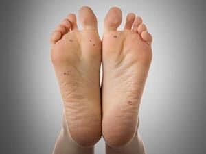 PLANTAR-WARTS-Dr-sumit-gupta-dermatologist-delhi