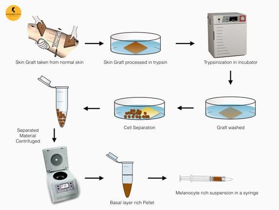 Melanocyte Transplantation