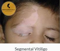 Segmental Vitiligo or Unilateral Vitiligo
