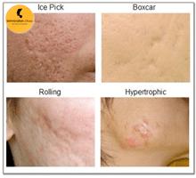 Acne-Scar Removal in Delhi