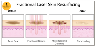 Acne-Scar-Removal-Dr-Sumit-gupta-02