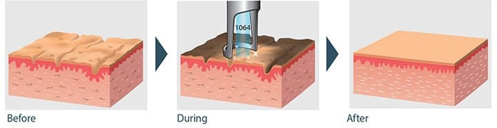 Spectra-Carbon-Laser-Peel-Dr-sumit-gupta-dermatologist-01