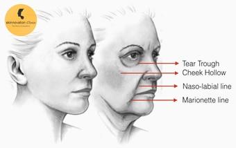 Botox and Dermal Fillers in Delhi