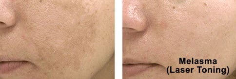 What are the remedies to Pigmentation