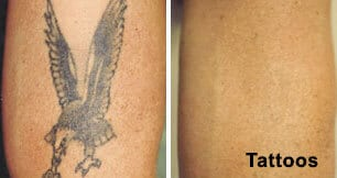 Tattoo Removal in Delhi