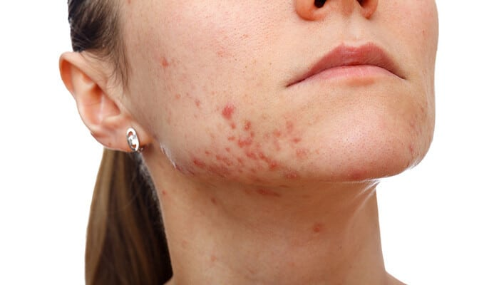Acne Vulgaris - Symptoms, Causes and Treatment | Dr. Sumit ...