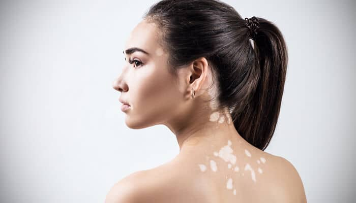 Facts and Myths About Vitiligo
